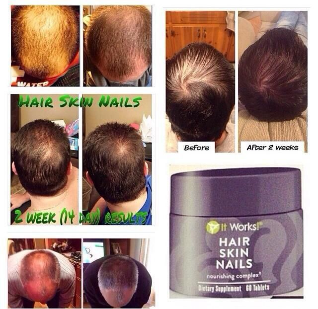 It Works Hair Skin Nails Before And After Men hair , skin , and nails ...