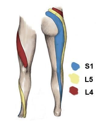 5 Home Remedies to Help Reduce Sciatic Pain | Sports Injury Clinic Repinned by  SOS Inc. Resources  http://pinterest.com/sostherapy.