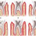 periodontitis asociada a lesiones endodonticas Periodontitis apical crónica  La periodontitis apical crónica es la fase crónica de la inflamación y puede presentarse de forma crónica o bien proceder de un proceso agudo.  Siempre es secundaria a una necrosis pulpar, y por este motivo habrá una respuesta negativa a las pruebas de vitalidad.  El paciente no presenta dolor debido a que disminuye la presión tisular.  La inflamación crónica se puede presentar por diferentes cuadros clínicos: