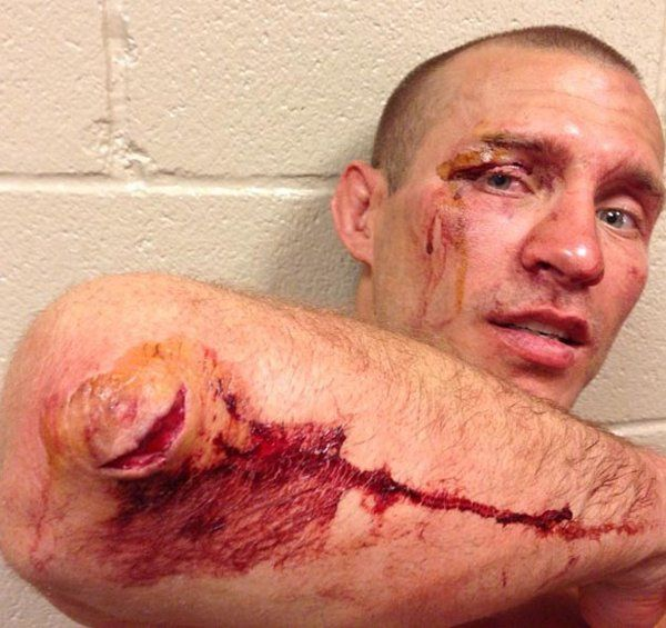 'Cowboy' Cerrone shows off his UFC 160 battle scars | Cagewriter - Yahoo! Sports Canada
