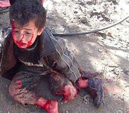 This little kid lost his foot today in Syria. He has also lost his family too…