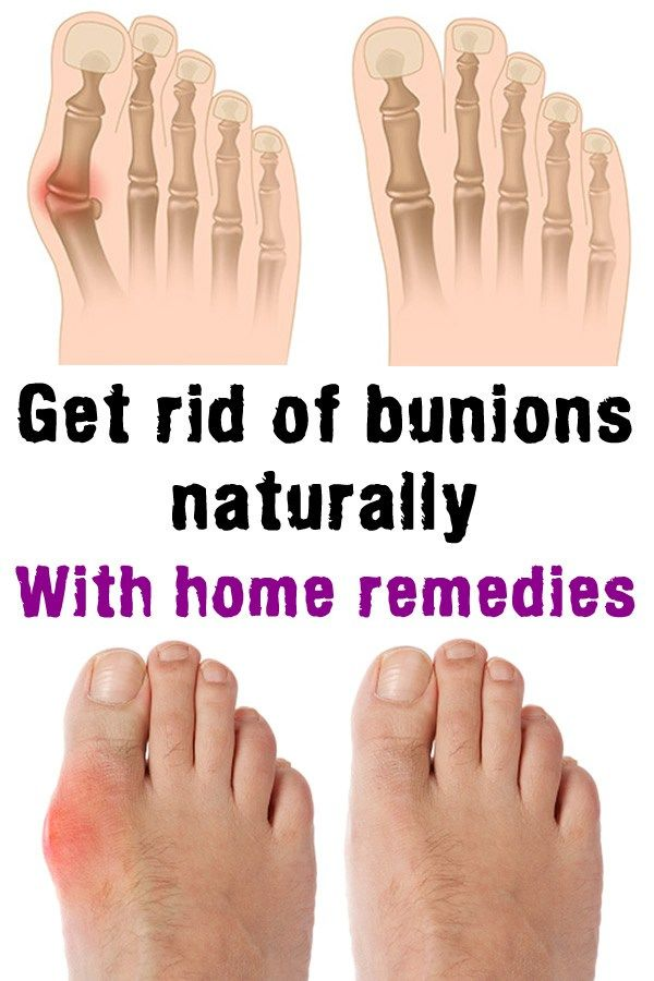 Get rid of bunions naturally, with home remedies