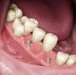 ¿Qué Son los Implantes Dentales?    Los implantes son elementos metálicos que se ubican quirúrgicamente en los huesos maxilares, debajo de las encías. Una vez colocados en el lugar, el dentista puede colocar sobre ellos las coronas o puentes fijos que reemplazarán a las piezas dentarias perdidas. Colgate.com