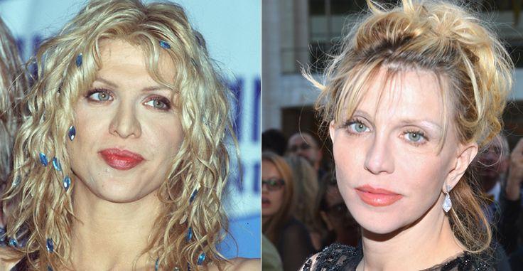 Courtney Love Courtney admitiu que não gostou do resultado que obteve após preencher os lábios e fazer uma rinoplastia.