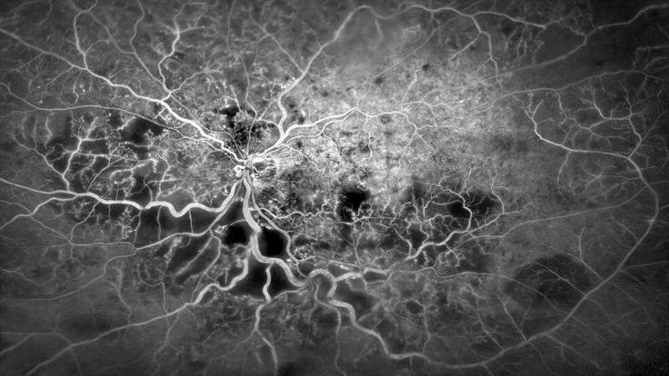 Los premios Wellcome Image Awards eligen cada año las mejores imágenes de la biomedicina, la disciplina que engloba la biología, la química, la medicina y también la ingeniería. Estas son algunas de las fotografías más logradas y espectaculares de lo que no podemos ver a simple vista. La imagen de arriba no es una fotografía aérea de una gran metrópolis iluminada sino una angiografía con fluoresceína del ojo humano. Lo que parecen carreteras y ríos son en realidad los vasos sanguíneos del…