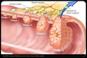Colon Cancer Symptoms, Causes, Diagnosis And Treatment
