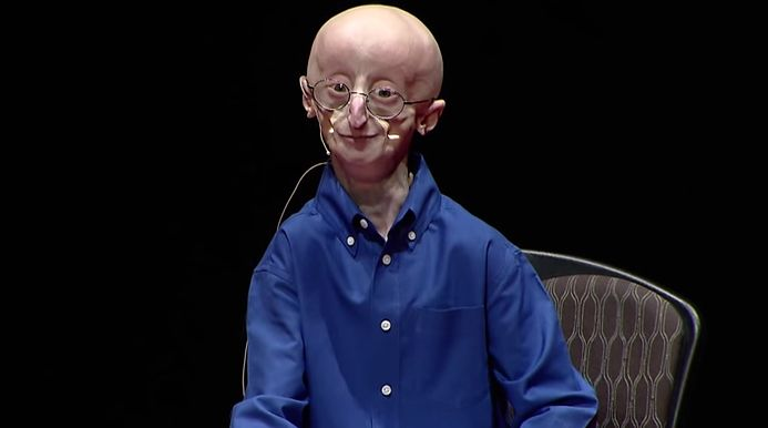TED Talks With Sam Berns: My Philosophy For A Happy Life. - http://socksonanoctopus.com/blog/2014/06/ted-talks-sam-berns-philosophy-happy-life/