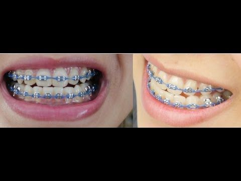 Braces Before And After Pictures!