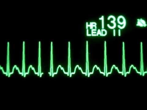 Sinus Tachycardia  tune keeps rhythm w/ R-R