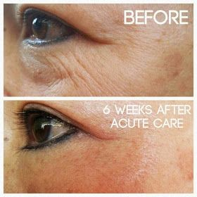 Nellie & Phoeb's: Rodan and Fields Acute Care, no needle required, pain free filler for expression lines