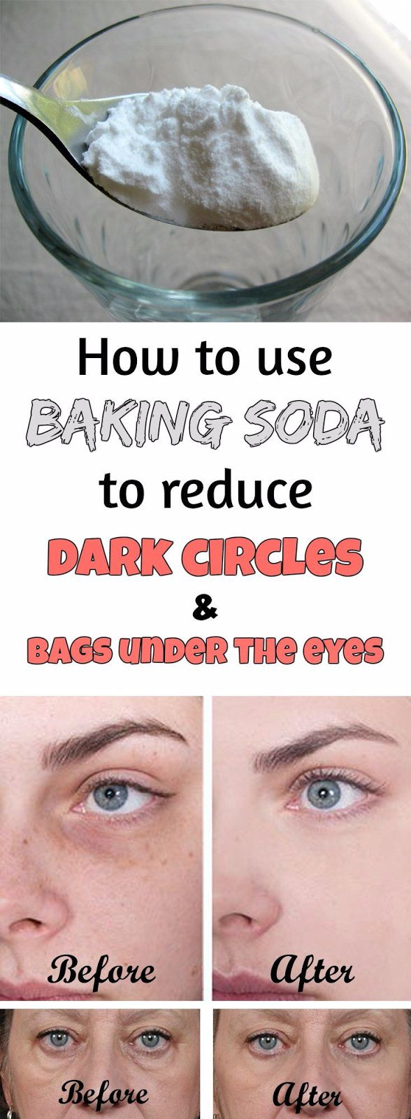 Best 25 baking soda uses ideas on pinterest bath recipes bath how to use baking soda to reduce dark circles and bags under the eyes ccuart Images