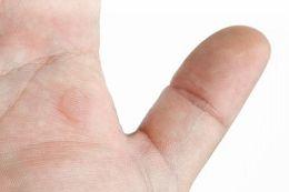 Dyshidrotic Eczema Treatment- Soaking the affected part of the skin in sea salt or white vinegar soak