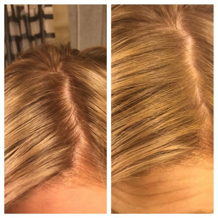 Preen.Me VIP Breanna G sends her roots into hiding using her gifted John Frieda Root Blur in Honey to Caramel Blondes (available exclusively at ULTA.com). Discover this innovative hair concealer through this #jfrethinkcolour tutorial.
