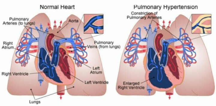 Pulmonary Hypertension | Pulmonology | Pinterest | Health ...