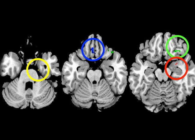 Mother–daughter similarities in the brain are most pronounced in regions involved in controlling emotion: the amygdala (red), gyrus rectus (blue), orbitofrontal cortex (green), parahippocampus gyrus (yellow), and anterior cingulate cortex.