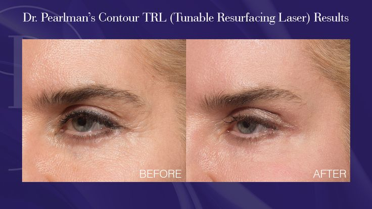 Before and after photos of our lovely patient whose aesthetic concern was improving the appearance of the skin around her eyes non-surgically  The Contour TRL employs an erbium laser to treat the skin using a fractionated grid. This fractional pattern allows for the outer layer of skin to heal more rapidly, while stimulating collagen and elastin in the deeper layers of skin. It is versatile enough to treat sensitive areas other than the face, including eyelids, cheeks, neck, and hands.