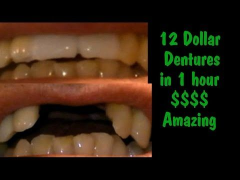 8 best teeth images on pinterest dental teeth and tooth cheap dentures 12 dollar dentures bridge in about 1 hour diy solutioingenieria Image collections