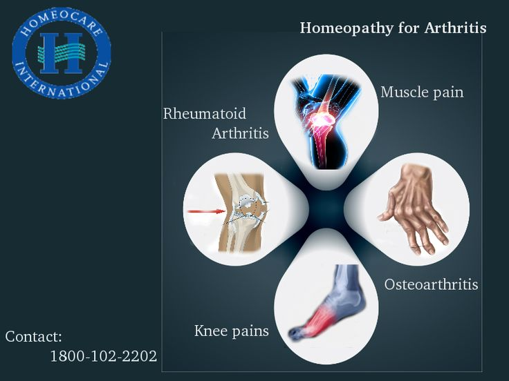 Arthritis is a disorder, Which is more complicated to come out. Homeopathy is the safe way to treat Arthritis problems. Homeocare International is the place, where we are providing Arthritis homeopathy treatment since 1986.
