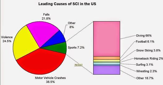 Leading causes of Spinal Cord Injuries in USA.   buff.ly/YXzAC9  #parapalegic #catheter #selfcatheters #SelfCatheritization #WheelChairLife #wheelchair #wheeling