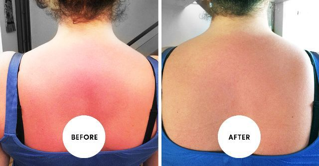 We tried a cream that promises to get rid of sunburns, blisters, and wrinkles. And it works.