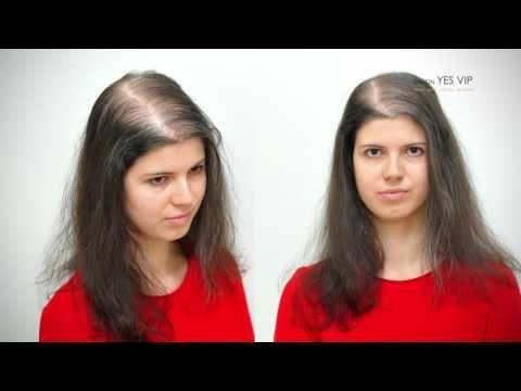 (1) Přirozené řešení řídkých jemných vlasů až lysin v Salon YES VIP - YouTube