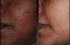 Skin bleaching cream for hyperpigmentation removal!