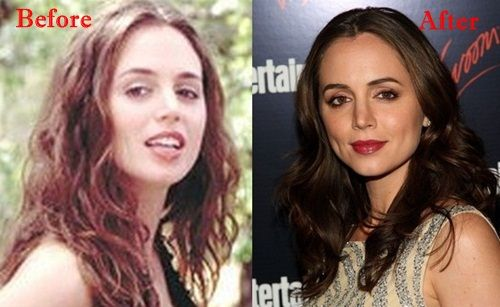 Eliza Dushku Platic Surgery Before and After