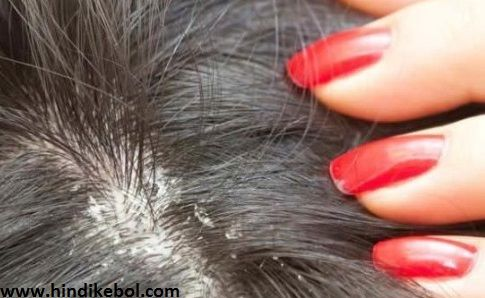 Hair Dandruff Solution In Hindi,Home remedies to get rid of dandruff tips in Hindi