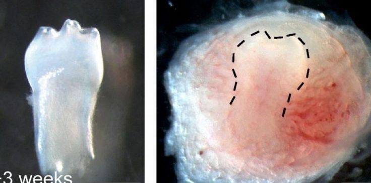 ♥✤♥ #Chine : Une #dent fonctionnelle créée à partir... d' #urine ! ♥✤♥  Des chercheurs chinois de l'Institut de biomédecine et de santé de #Canton viennent de proposer une alternative intéressante au #dentier , nouvelles options pour les #dentistes .  Ils ont réussi à faire pousser une dent de #souris à partir de #cellules souches prélevées dans l'Urine; via cellules souches pluripotentes induites (cellules #iPS ) #OMG #WTF #weird #bizarre #Strange #Odd #Funny #amazing