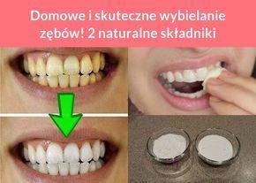 Domowe i skuteczne wybielanie zębów! 2 naturalne składniki