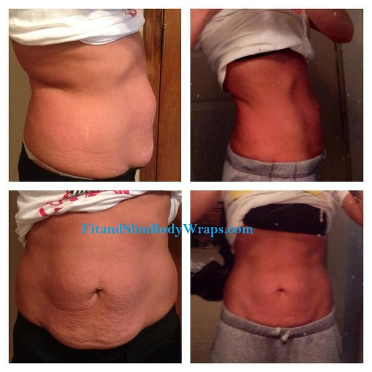 Helps tighten and tone even loose skin! If you want to get your ...