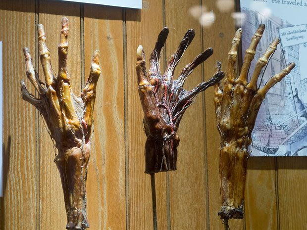 The 12 Creepiest Exhibits at Philadelphia's Mütter Museum of Medical Oddities