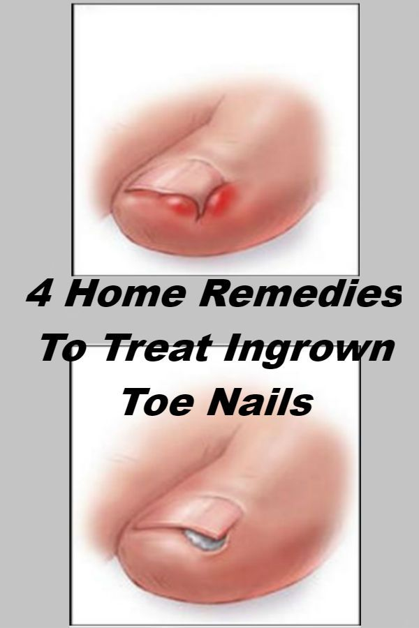 Anyone who has suffered from an ingrown toe nails knows that they aren't pleasant. This injury is small, but it can cause some major pain and annoyance. Ingrown toenails occur when the nail begins growing into the skin in a curved pattern. This growth irritates the skin, causing redness, tenderness, and swelling. In some cases, …