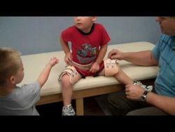 El síndrome de legg calve perthes es un trastorno en niños, en el que la cabeza femoral deja de recibir correctamente corriente sanguínea y, como consecuencia, ésta se colapsa.   El síndrome de legg calve perthes suele manifestarse entre los 2 y 4 años de edad, siendo los casos de menor gravedad. Con un comienzo con una sinovitis de cadera. Los síntomas comunes son dolor de rodilla, ligera claudicación al caminar, ligera rotación externa de su miembro inferior afectado.