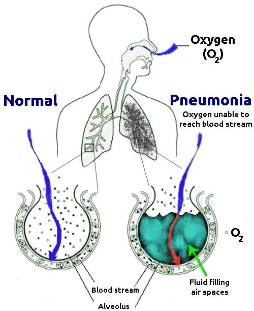 Difference Between Pneumonia and Pleurisy | Definition, Cause ...