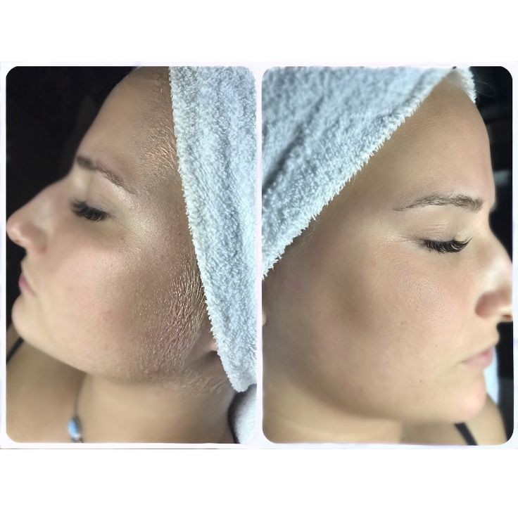 Dermaplanning is a great way to get rid of those unwanted vellus hairs (peach fuss)! Book your appointment with us today!!