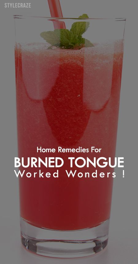 We all know that is never the last of those memorable burned tongue moments. So, here are a few easy home remedies with which you can put out the fire.