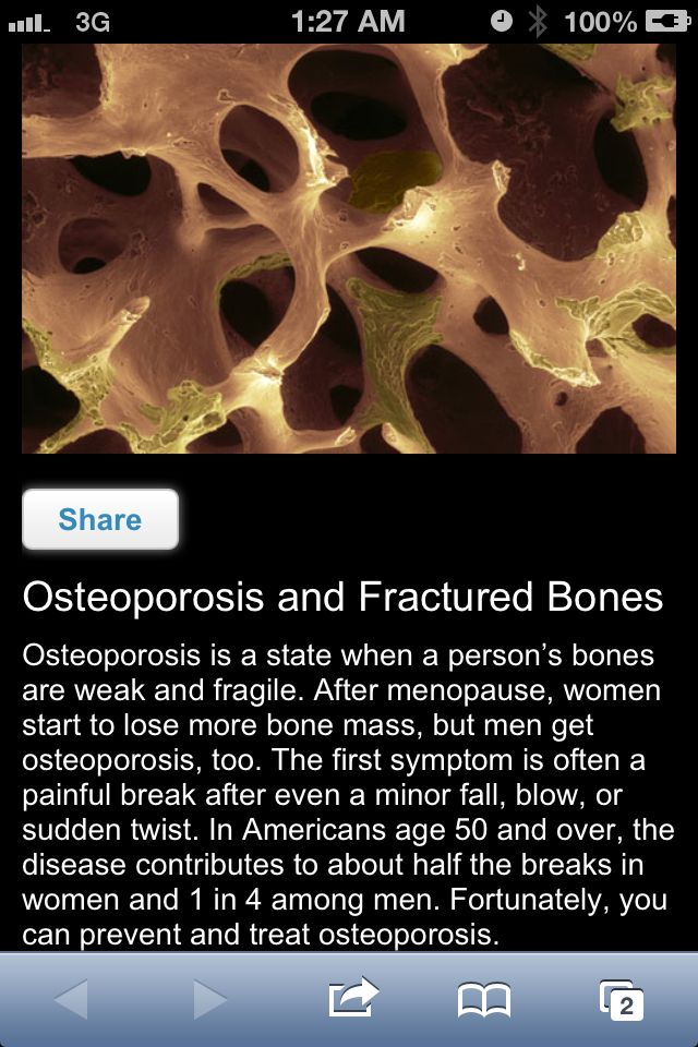 Osteoporosis & Fx Bone