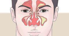 Développé par des médecins russes, cet exercice de respiration simple vous aidera à dégagerunnez bouché ou de sedébarrasser d'une congestion nasale en une minute. Cet exercice de respiration fonctionnehabituellement pourplus de 85% des gens. Assurez-vous de suivre les instructions correctement. Pincez votre nez congestionné et marchez rapidement avec votre nez pincé et votre bouche fermée …