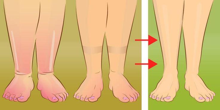 Задержка воды в организме проявляется в виде отечности различных участков тела, чаще всего – ног и лица. Причины задержки жидкости и способы выведения лишней жидкости из организма.