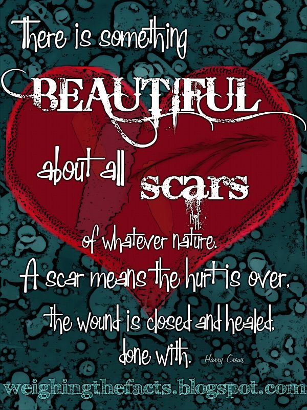 Image result for celebrate recovery scars suicide