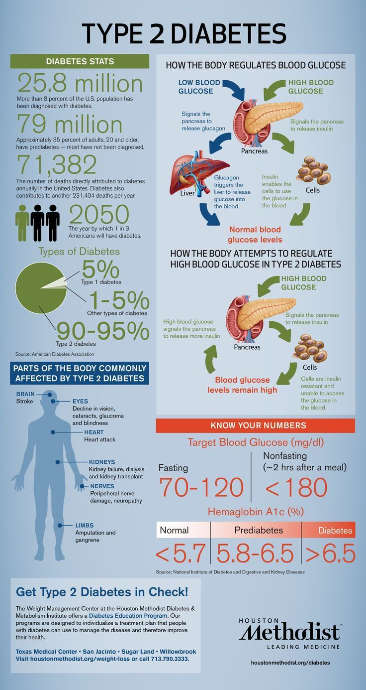 Type 2 #diabetes #infographic from Houston Methodist!
