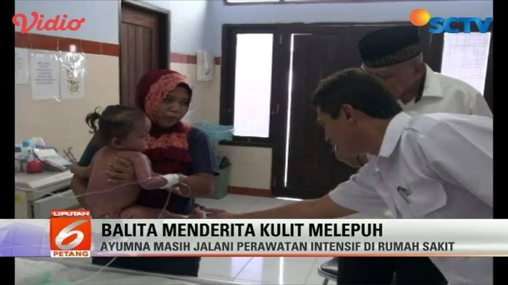 Seorang balita di Kalimantan Utara menderita penyakit kulit yang aneh. Sekujur tubuh bocah ini melepuh seperti habis terbakar.   #Liputan6SCTV #Liputan6TV
