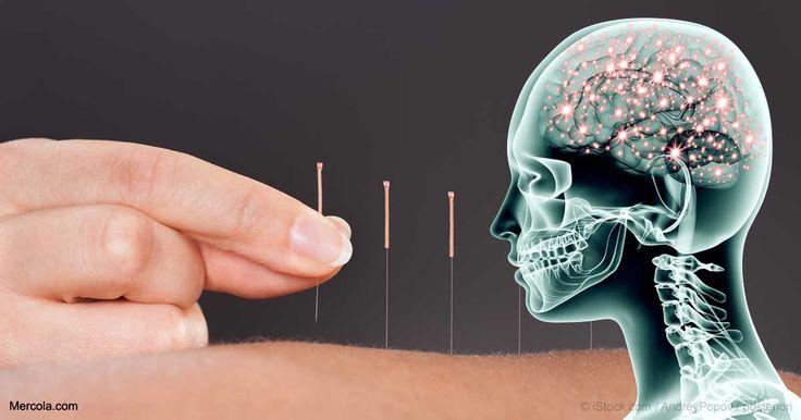 La investigación muestra que la acupuntura puede ser una opción eficaz para una serie de problemas de salud, y ayuda contra el dolor. http://articulos.mercola.com/sitios/articulos/archivo/2017/08/03/la-acupuntura-puede-reducir-el-dolor.aspx?utm_source=espanl&utm_medium=email&utm_content=artTestSP_B1&utm_campaign=20170728&et_cid=DM155276&et_rid=2095901185