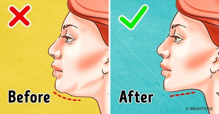 The7 Most Effective Exercises toGet Rid ofaDouble Chin