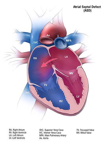 Atrial septal defect (ASD)::: the second most common congenital heart defect in adults behind the bicuspid aortic valve... patient will have a murmur at the left-upper sternal border (increased flow across the pulmonary valve)... the patients usually remain asymptomatic until adulthood... the RA and RV will be dilated from left to right shunting of blood across the ASD