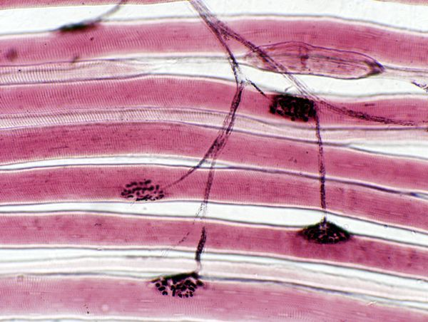 Last week's #mysteryanatomy structure was the neuromuscular junction. The neuromuscular junction (NMJ) is a chemical synapse formed by the contact between a motor neuron and a muscle fiber. It is at the NMJ that a motor neuron is able to transmit a signal to the muscle fiber causing muscle contraction. Read more @ https://www.facebook.com/biologycoachonline/