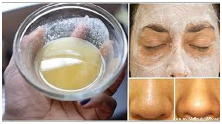 How to Use Baking Soda for Gorgeous Face and Skin - http://worldofhealth365.com/2016/05/how-to-use-baking-soda-for-gorgeous-face-and-skin/