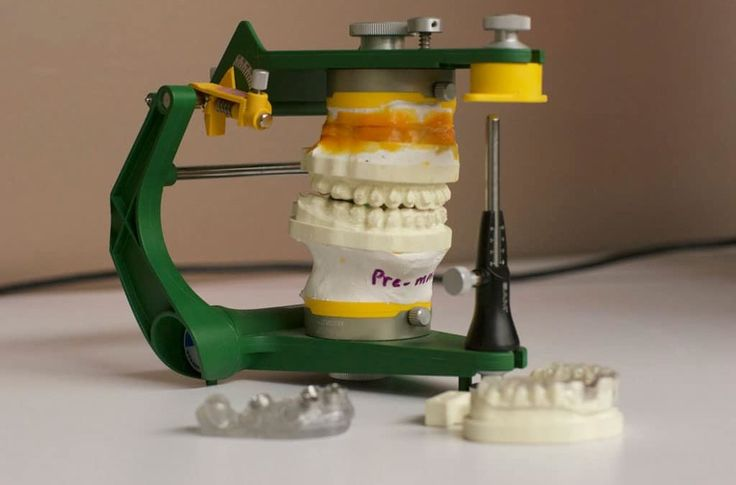 3D Printing in Dentistry: From a Broken Tooth to Digital Revolution