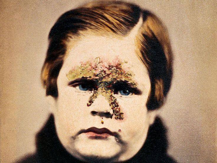 Impetigo Now rare, the bacterial infection known as impetigo was common in the 19th Century. This photo appeared in 1865 in an English textbook on skin disorders. It shows a child with pustules typical of the disease. Impetigo is typically seen in children, often following a cut, abrasion, or insect bite.